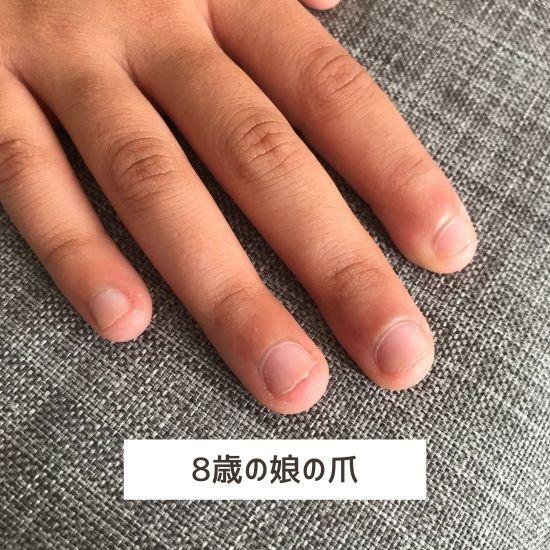 子供の短い爪